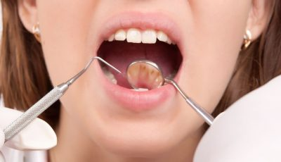 Dental cleaning in Londonderry