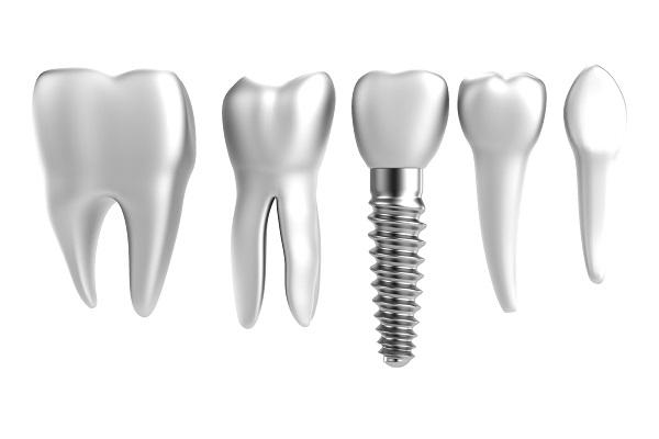 The Nevins Dental Implants